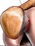 pijn bij knieschijf